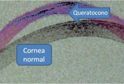 Queratocono VS córnea normal